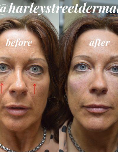 non-surgical-facelift 4