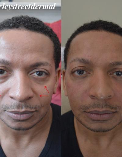 non-surgical-facelift 3
