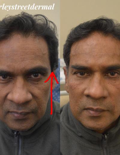 non-surgical-facelift 2