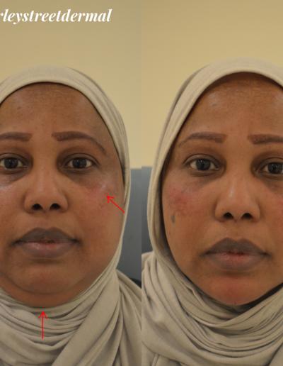 non-surgical-facelift 1