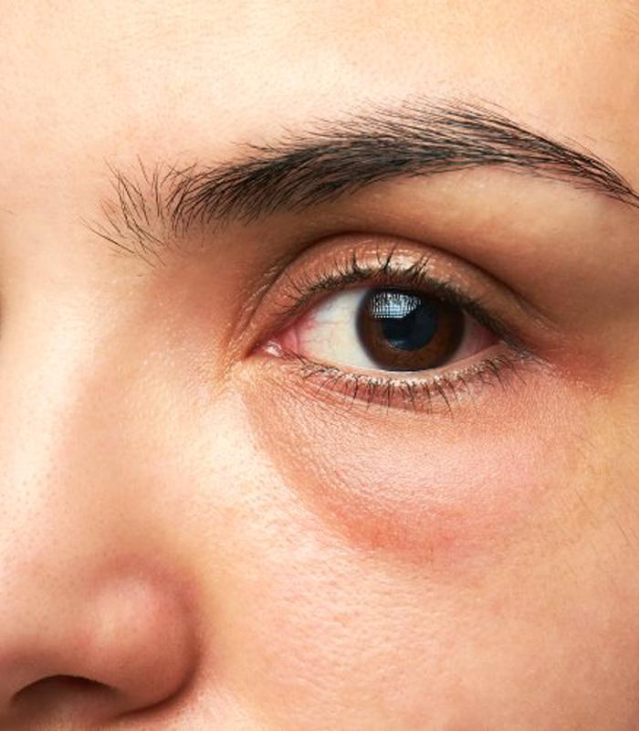 under-eye-bags-treatment